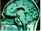 MRI of brain with multiple cysts from cysticercosis